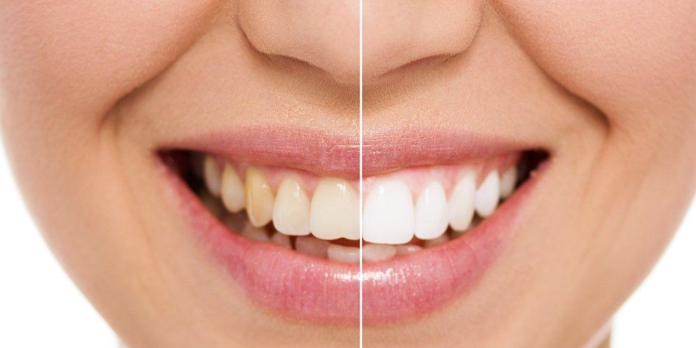Before and after image of smile
