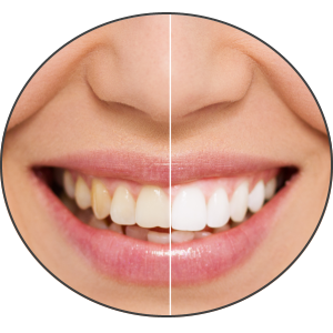 Teeth Whitening in Petersburg, IL